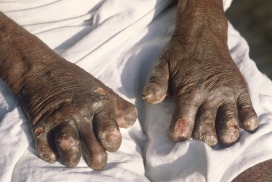 leprosy_deformities_hands